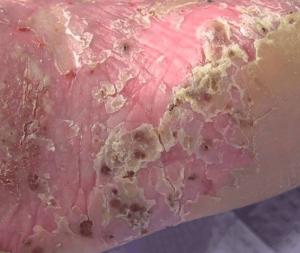 psoriaz left 300x253 - Dermal gel obnavlja kožu oštećenu psorijazom